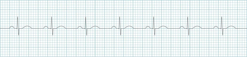 ECG-Normal-sinus-rhythm-strip