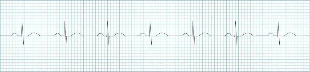 ECG-Normal-sinus-rhythm-strip