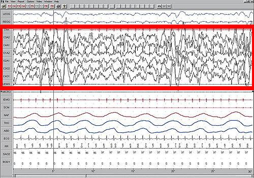 500px-Sleep_EEG_Stage_4